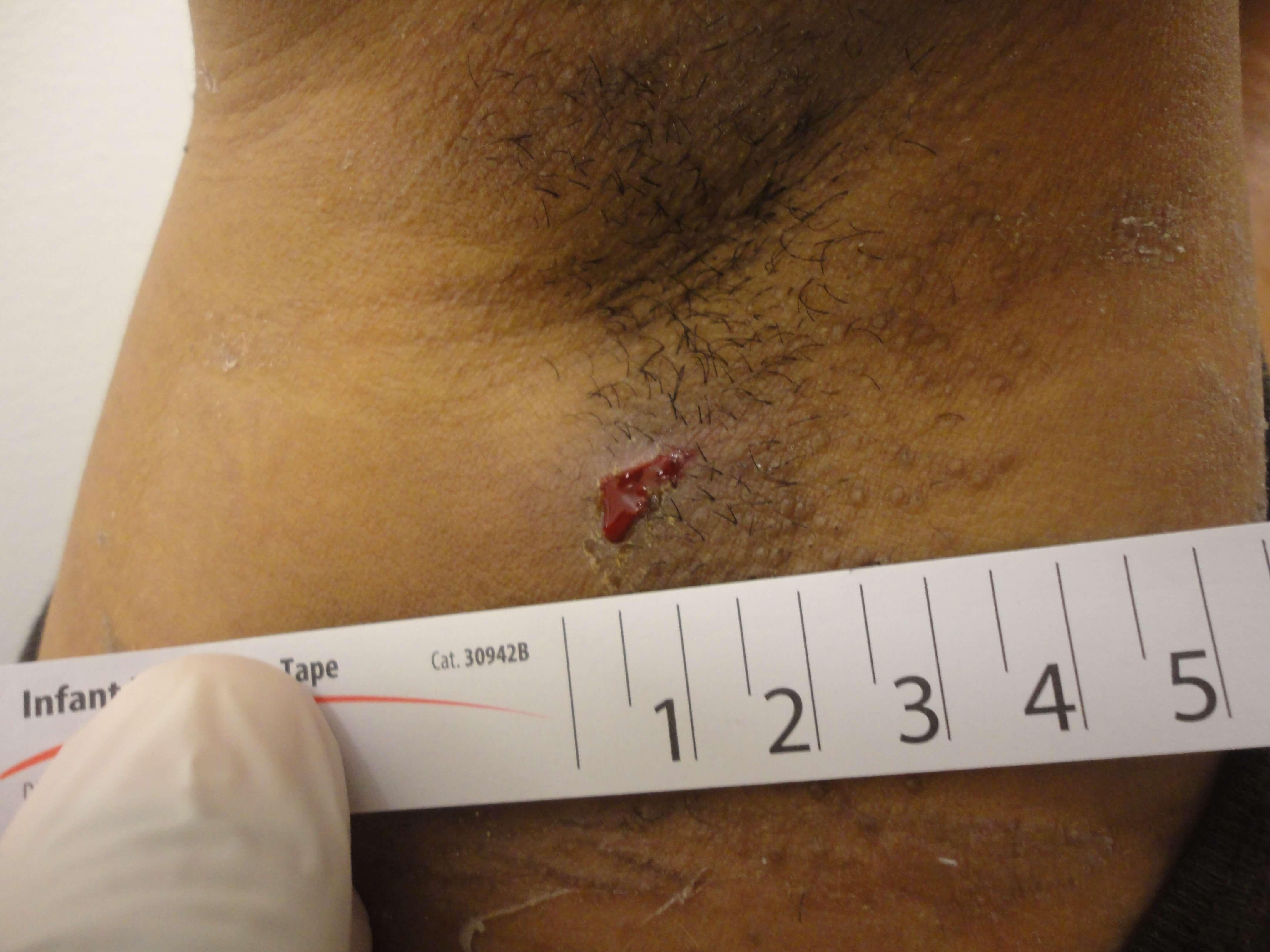 Derma-Stent scar results shown.