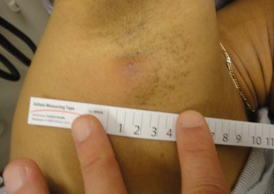 The result of proper application of the Derma-Stent resulting in minimal scarring
