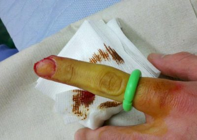 Large Tourni-Cot | Digit Tourniquet | Nailbed Injury | Emergency Medicine | Medical Device | Mar-Med