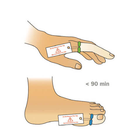 Tourni-Cot | Digit Tourniquet Application | How to Apply the Finger and Toe Tourniquet | Emergency Medicine | Mar-Med