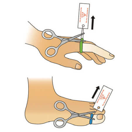 Tourni-Cot | Digital Tourniquet Application | Finger and Toe Tourniquet Application | Hand Surgery | Digital Tourniquet | Nailbed Repair | Nailbed Injury | Nailbed Lacerations | Ring Tourniquet | Ring Digital Tourniquets | Pediatrics | Pediatric Emergency Department | Children's Hospital Devices | Pediatric Patients