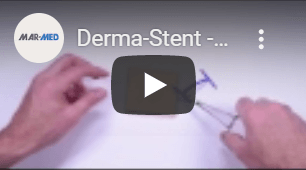 Derma-Stent | Abscess and Cyst Drain | Minimally Invasive Abscess and Cyst Treatment | Abscess Drain | Emergency Abscess | Abscess Pediatric | Urgent Care Treatment | Urgent Care Medical Devices | Treat an Abscess | Drain a Cyst | Loop Drain | Loop Drain Method | Pediatric Abscess Drain